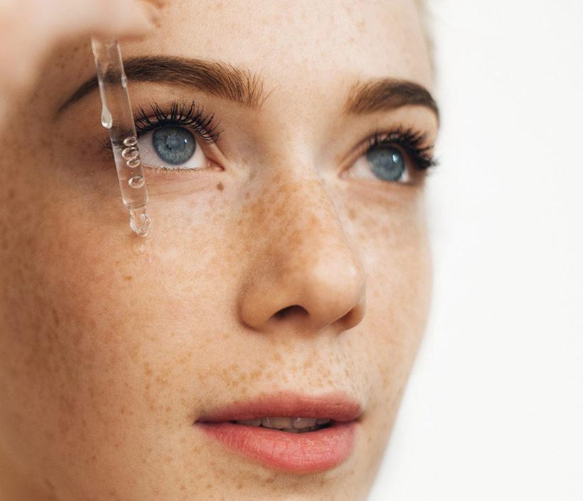 Kosmetička radí – pigmentové skvrny